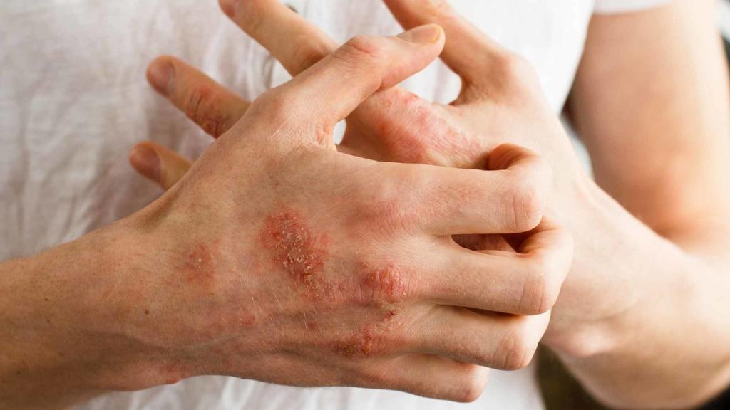 eczema rash