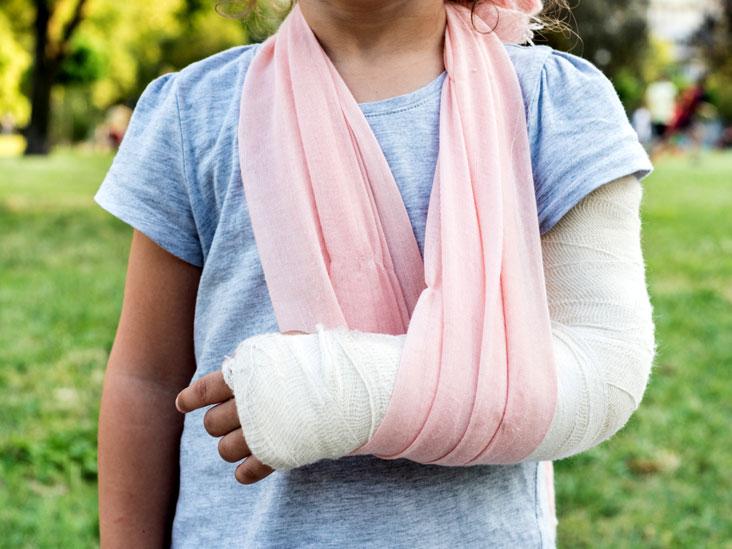 help your broken arm to heal